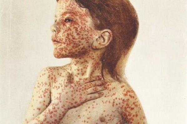 Εικόνα παιδιού με εξανθήματα από ευλογιά, πριν την ανακάλυψη του εμβολίου για τη νόσο, που έγινε το 1796 από τον Edward Jenner.