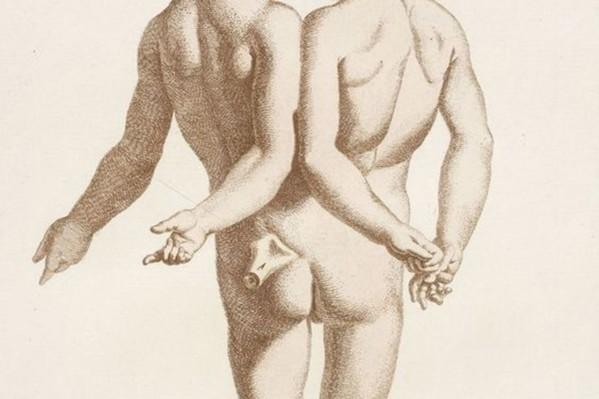 Οι αποκλίσεις της φύσης, από το γαλλικό βιβλίο ''Η συλλογή των κυριότερων τερατουργημάτων'' (1775).