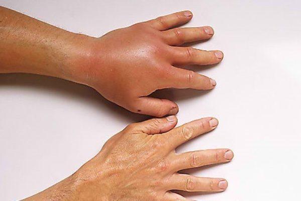 Αλλεργική αντίδραση σε τσίμπημα σφήκας - πάμε αμέσως σε γιατρό ή καλούμε τα επείγοντα (166 ή 112)